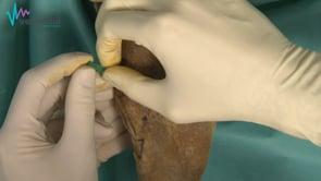 Artrocentesis proximal de rodilla