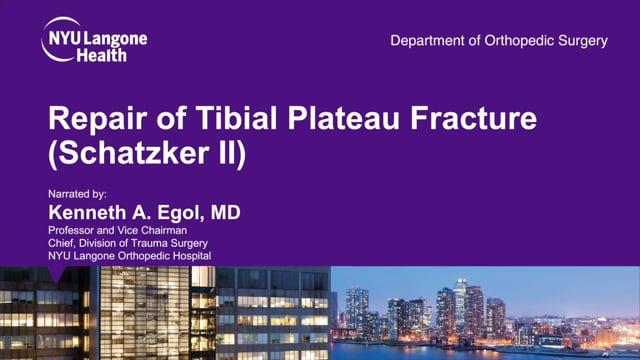 Repair of Tibial Plateau Fracture Schatzker II