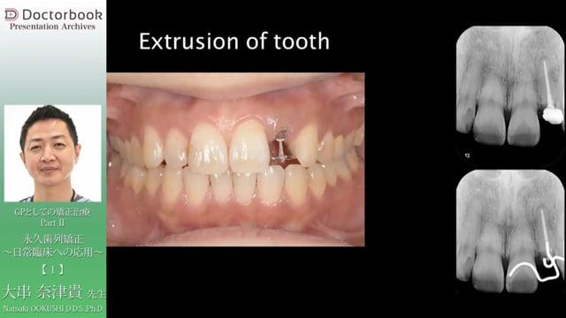 GPとしての矯正治療 PartⅡ「永久歯列矯正 〜日常臨床への応用〜」