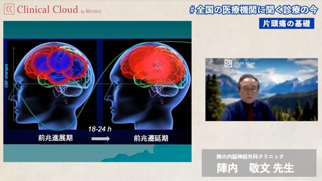 陣内 敬文 先生:片頭痛診療の基礎から治療介入まで