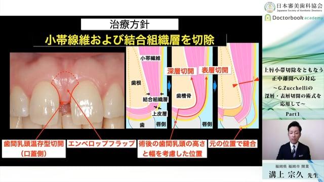 【日本審美歯科協会 WEB講演会】上唇小帯切除をともなう正中離開への対応 〜G.Zucchelliの深層・表層切開の術式を応用して〜