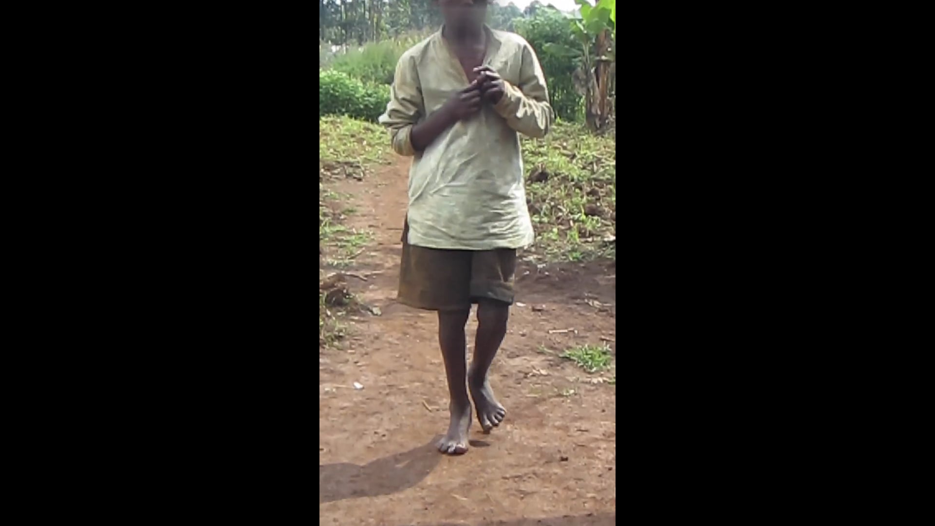 Module 3: Video showing walking difficulties due to severe tungiasis