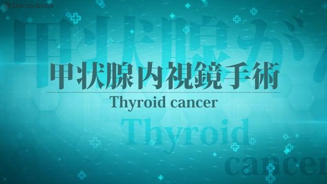 中条 哲浩先生:甲状腺内視鏡手術とは ; 手術の特徴や適用される腫瘍はどれ?