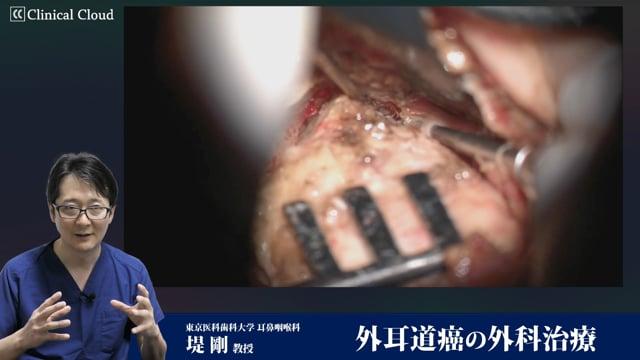 堤 剛先生:外耳道癌の外科治療