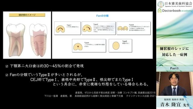 【日本審美歯科協会 WEB講演会】樋状根のレッジに対応した一症例