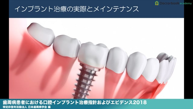 『歯周病患者における口腔インプラント治療指針およびエビデンス2018』解説【Part3を公開!】