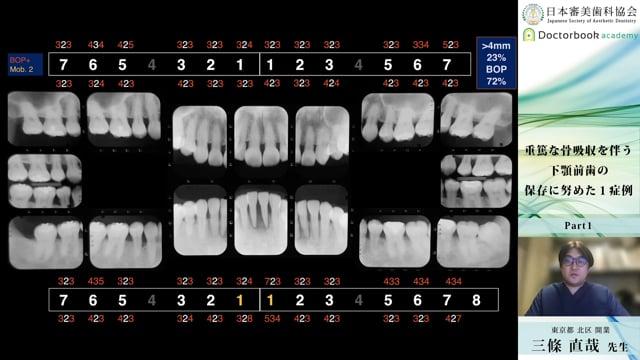 【日本審美歯科協会 WEB講演会】重篤な骨吸収を伴う下顎前歯の保存に努めた1症例