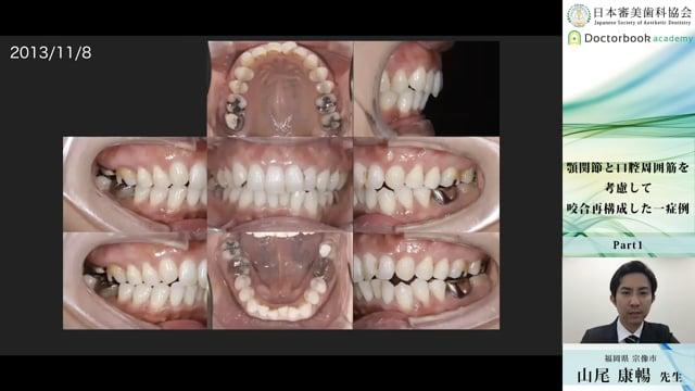 【日本審美歯科協会 WEB講演会】顎関節と口腔周囲筋を考慮して咬合再構成した一症例