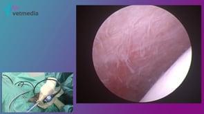 Artroscopia de hombro -  Exploración básica