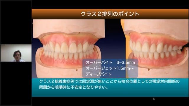 Vol.2 クラス2・3を成功させる人工歯配列テクニック