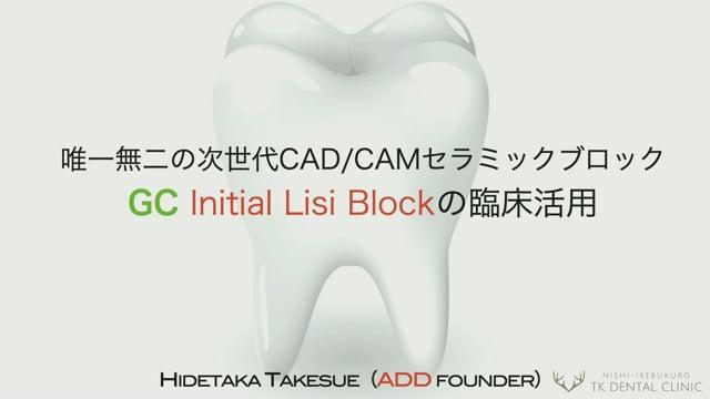 唯一無二の次世代CAD/CAMセラミックブロック GC Initial Lisi Blockの臨床活用