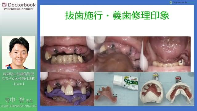 周術期口腔機能管理における医科歯科連携