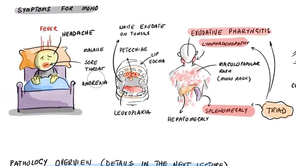 Epstein Barr Virus (EBV) - Long COVID