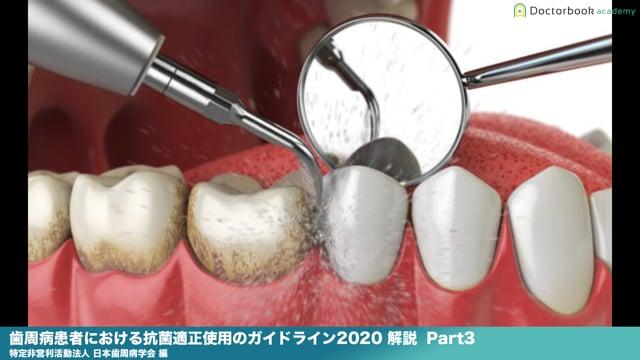 『歯周病患者における抗菌適正使用のガイドライン2020 』解説 Part3