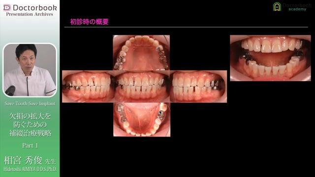 Save Tooth Save Implant〜欠損の拡大を防ぐための補綴治療戦略〜