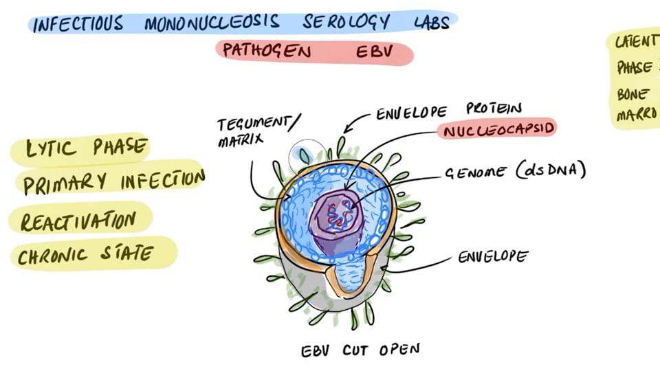 Epstein Barr Virus (EBV) Serology