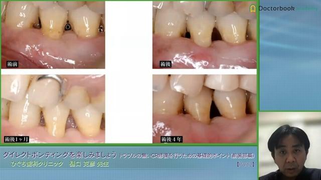 #2 Caries ~歯頸部充填~