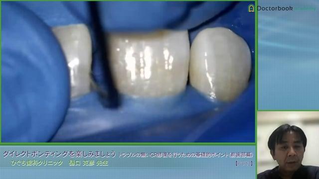 #3 前歯部の隙間をCRで充填した症例