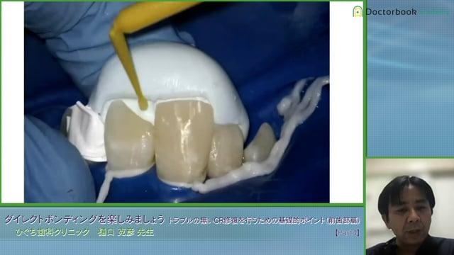 #4 歯頸部CRのリカバリー症例