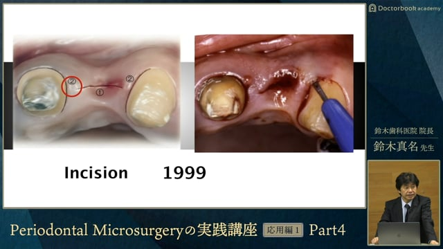#4 欠損歯槽堤の分類
