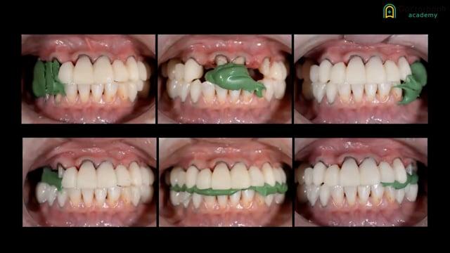 #2 顎運動の計測、診断、治療計画、インプラント埋入