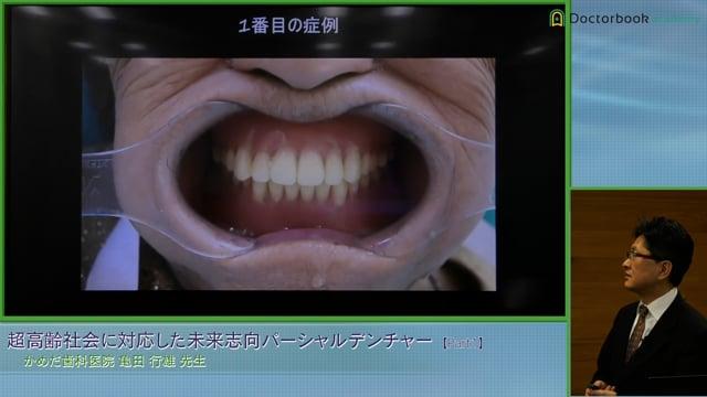 #1 超高齢社会における可撤式義歯という補綴の選択