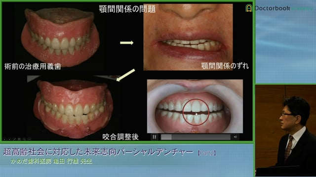 #2 上下無歯顎症例