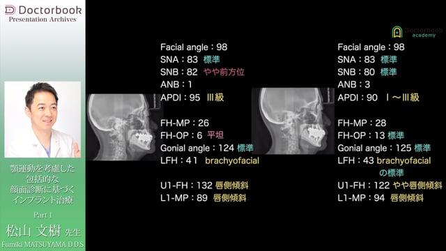 顎運動を考慮した包括的な顎顔面診断に基づくインプラント治療