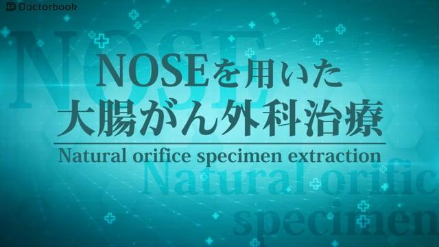 西村 淳先生:NOSEを用いた大腸がん外科治療 そのメリット・適応とは?