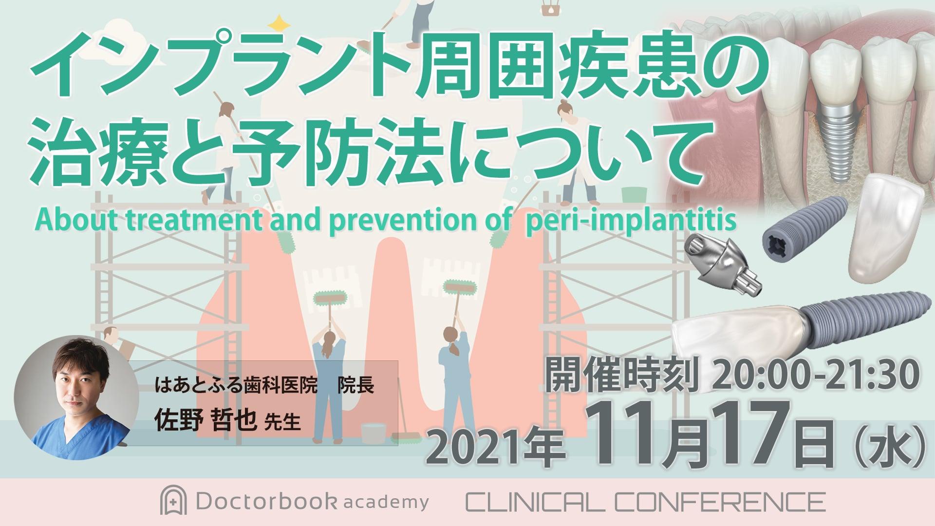 インプラント周囲疾患の治療と予防法について