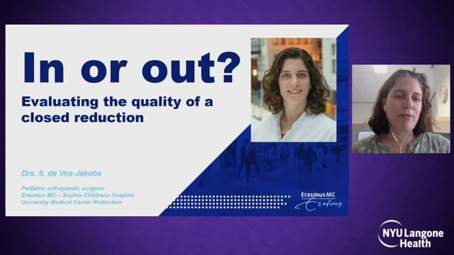 Evaluating the Quality of a Closed Reduction – International Hip Dysplasia Symposium