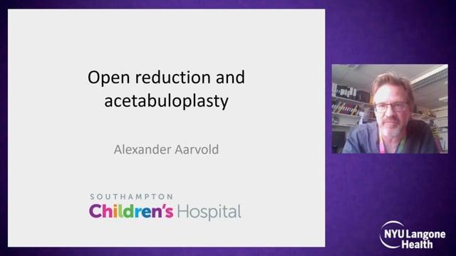 Open Reduction and Acetabuloplasty – International Hip Dysplasia Symposium