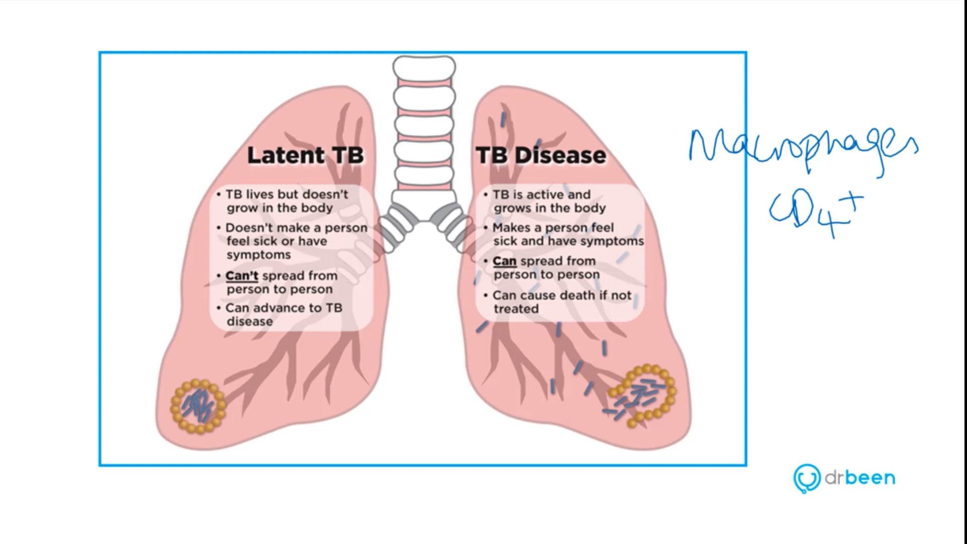 Tuberculosis (Dr. Bhatti)