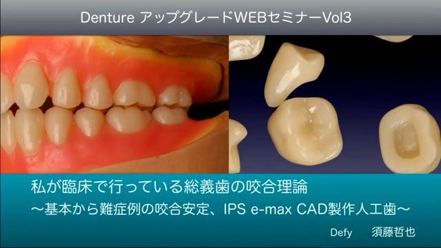 Vol.3 私が臨床で行なっている総義歯の咬合理論 〜基本から難症例の咬合安定、 IPS e.max CAD製作人工歯〜