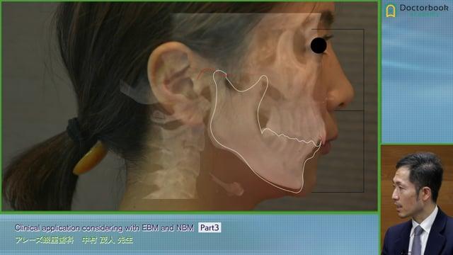 #3 顎位と歯における問題