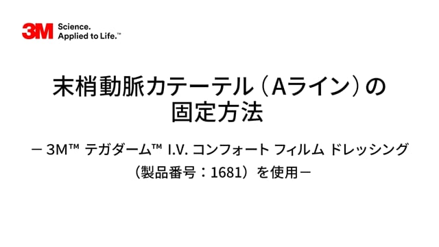 末梢動脈カテ-テル(Aライン)の固定方法-3M™ テガダ-ム™ I.V.コンフォ-ト フィルムドレッシング(1681)を使用-