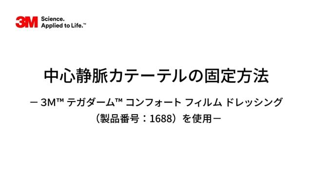 中心静脈カテ-テルの固定方法-3M™ テガダ-ム™ コンフォ-ト フィルムドレッシング(1688)を使用-