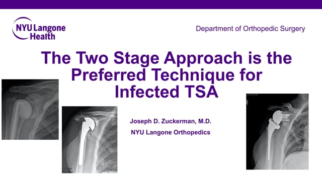 The Two Stage Approach is the Preferred Technique for Infected TSA