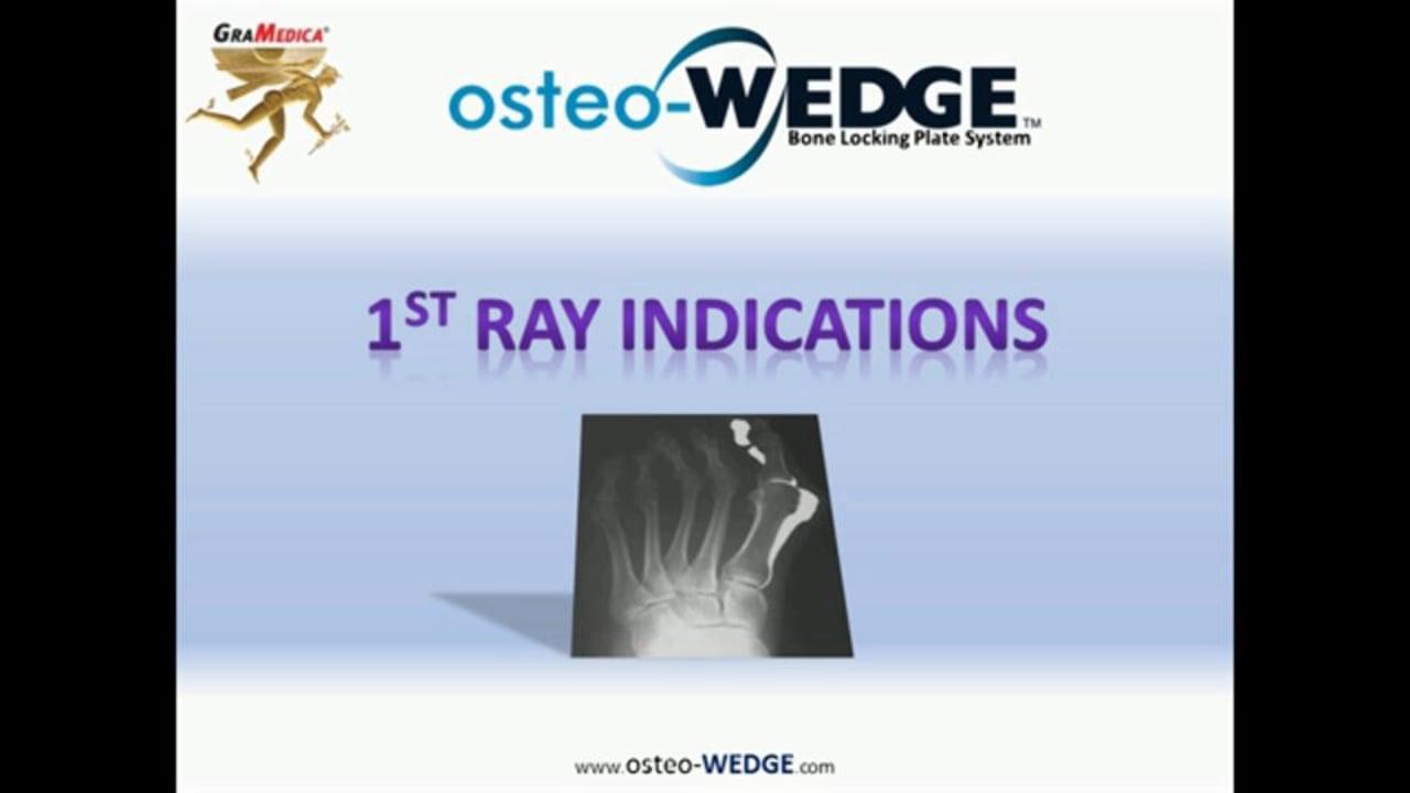 osteo-WEDGE Benefits