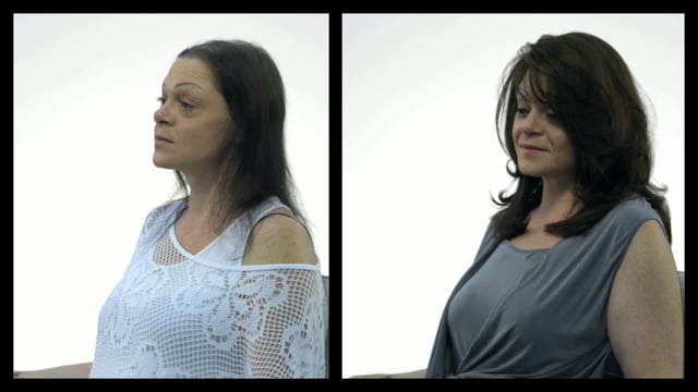 Hair Creation Makeover with Hairdreams MicroLines System