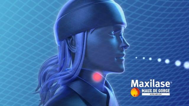 Maxilase - Demo 3D
