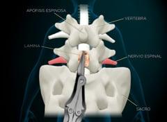 B2a Laminectomía lumbar