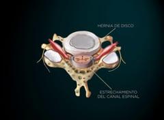 Estenosis Cervical
