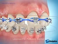 Self Ligating Brackets (Elastomeric Chain Ligation)