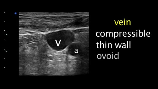 Ultrasound-Guided Central Venous Catheter Placement