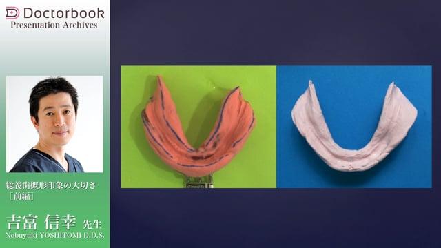 総義歯概形印象の大切さ(前編)