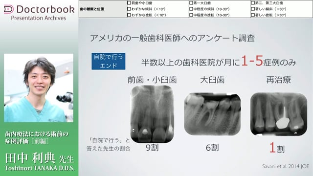 歯内療法における術前の症例評価