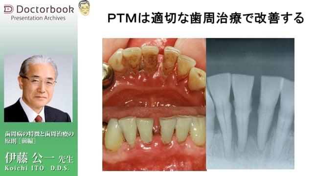 #1 歯周病の特徴「4S」+α