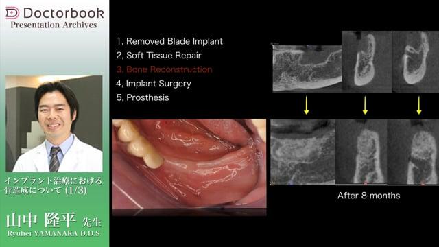 インプラント治療における骨造成について