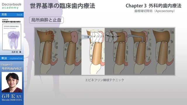 【BookReview】『世界基準の臨床歯内療法』#2
